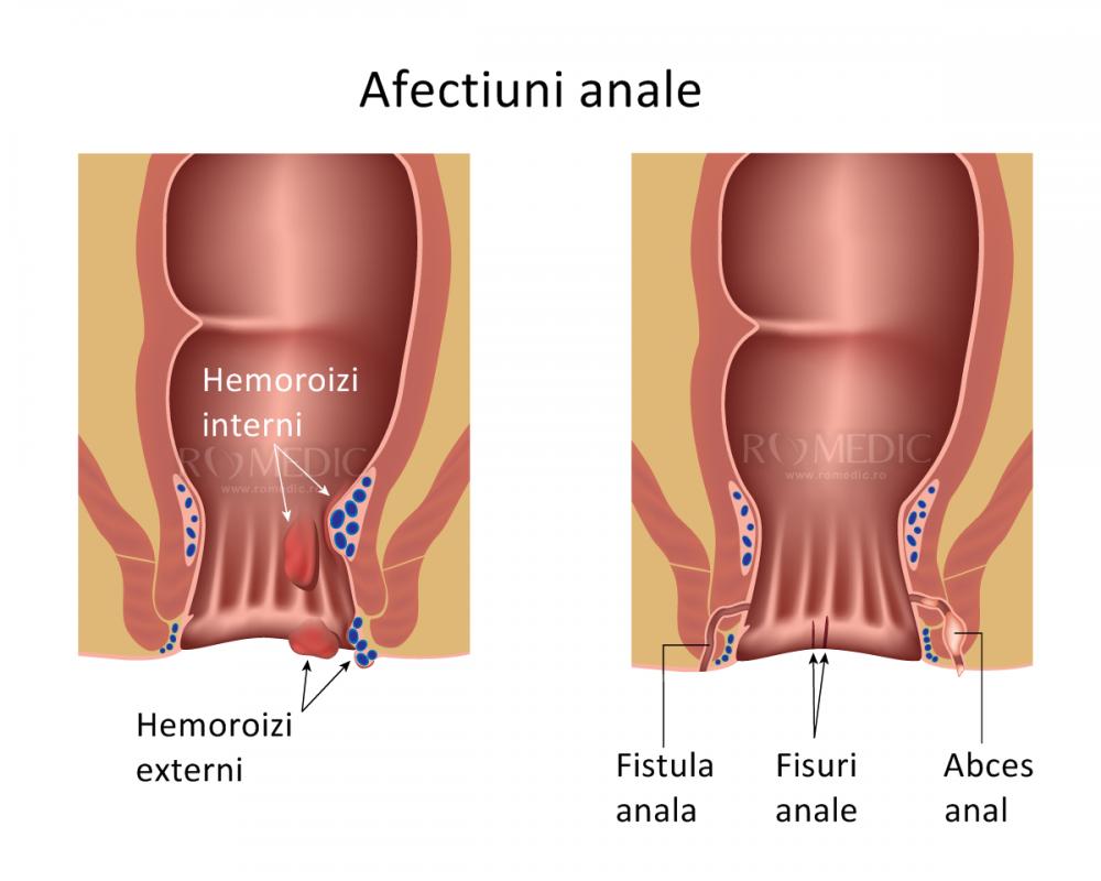 balsam articular și muscular tratamentul articulațiilor genunchilor pe genunchi