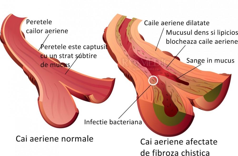 pierderea în greutate din cauza fibrozei pulmonare)