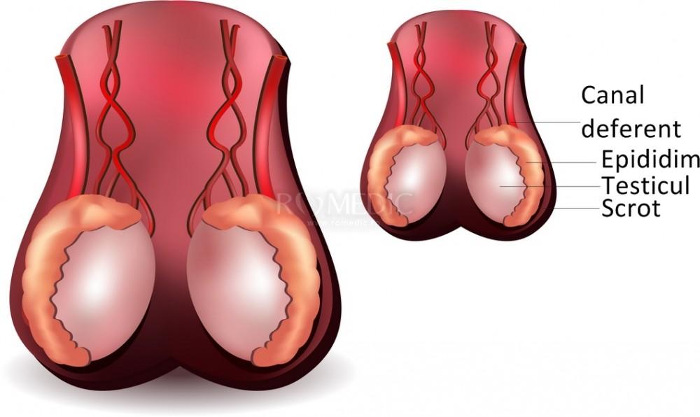 Boli ale organelor sexuale la barbati