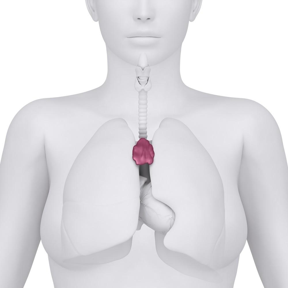 Simptome cancer timus. Calculi renali | Pietre la rinichi | Simptome, tratament, cauze