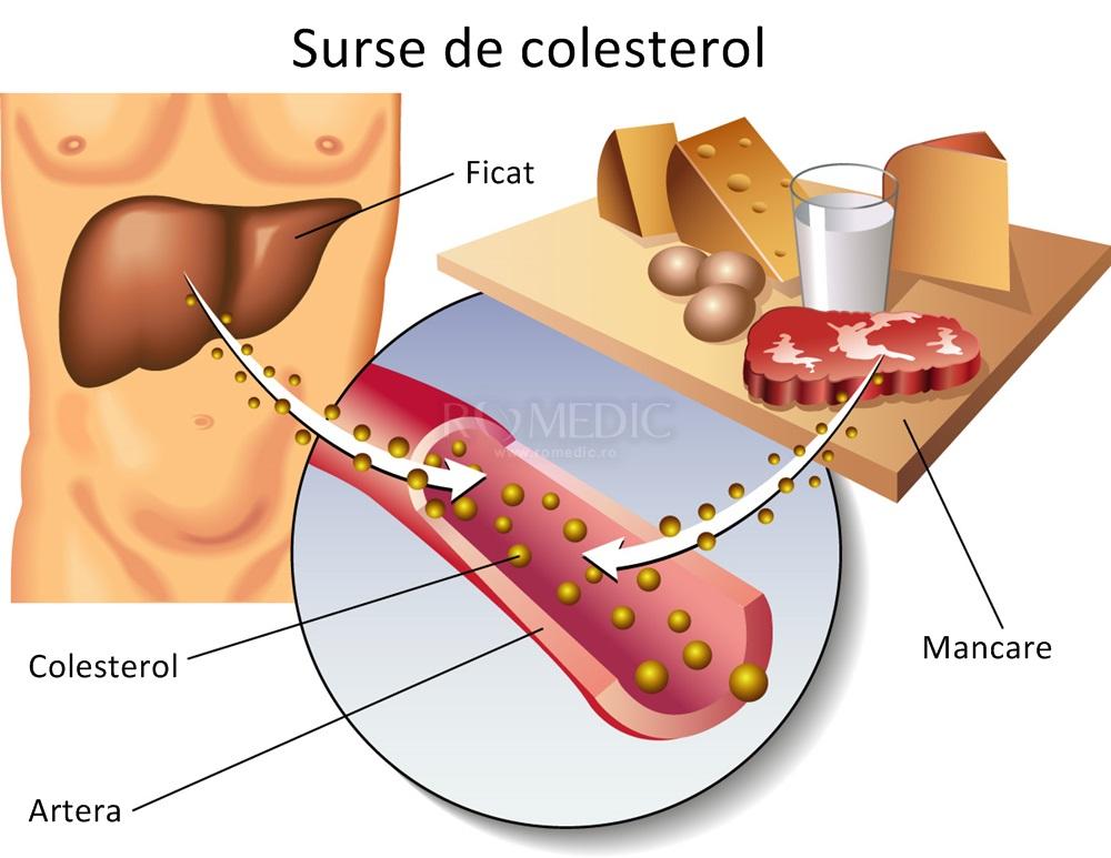 colesterol seric total crescut