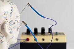 Galvanopunctura (electroacupunctura)