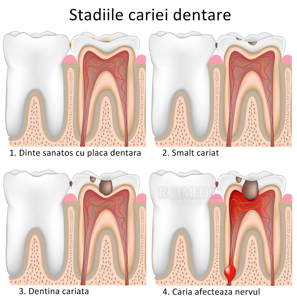 dureri articulare din cariile dentare)