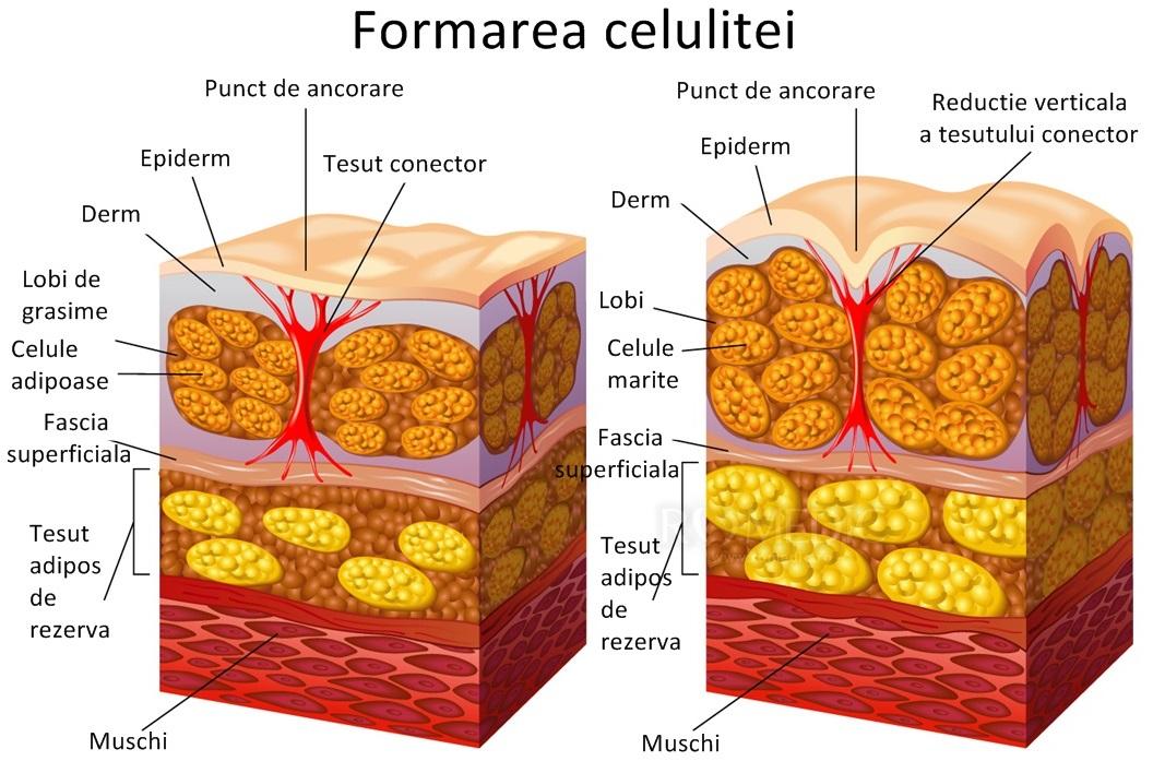 lipo îndepărtează permanent celulele grase