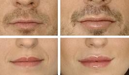 Marirea buzelor - tehnici si riscuri
