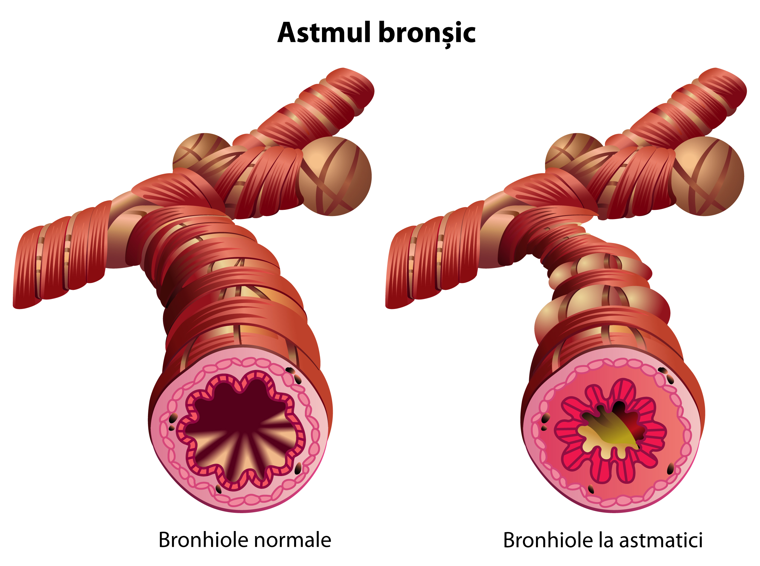 astmul sever și pierderea în greutate