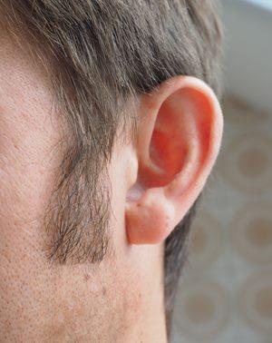 Funcțiile implantul cohlear ar putea fi îmbunătățite cu ajutorul  optogeneticii