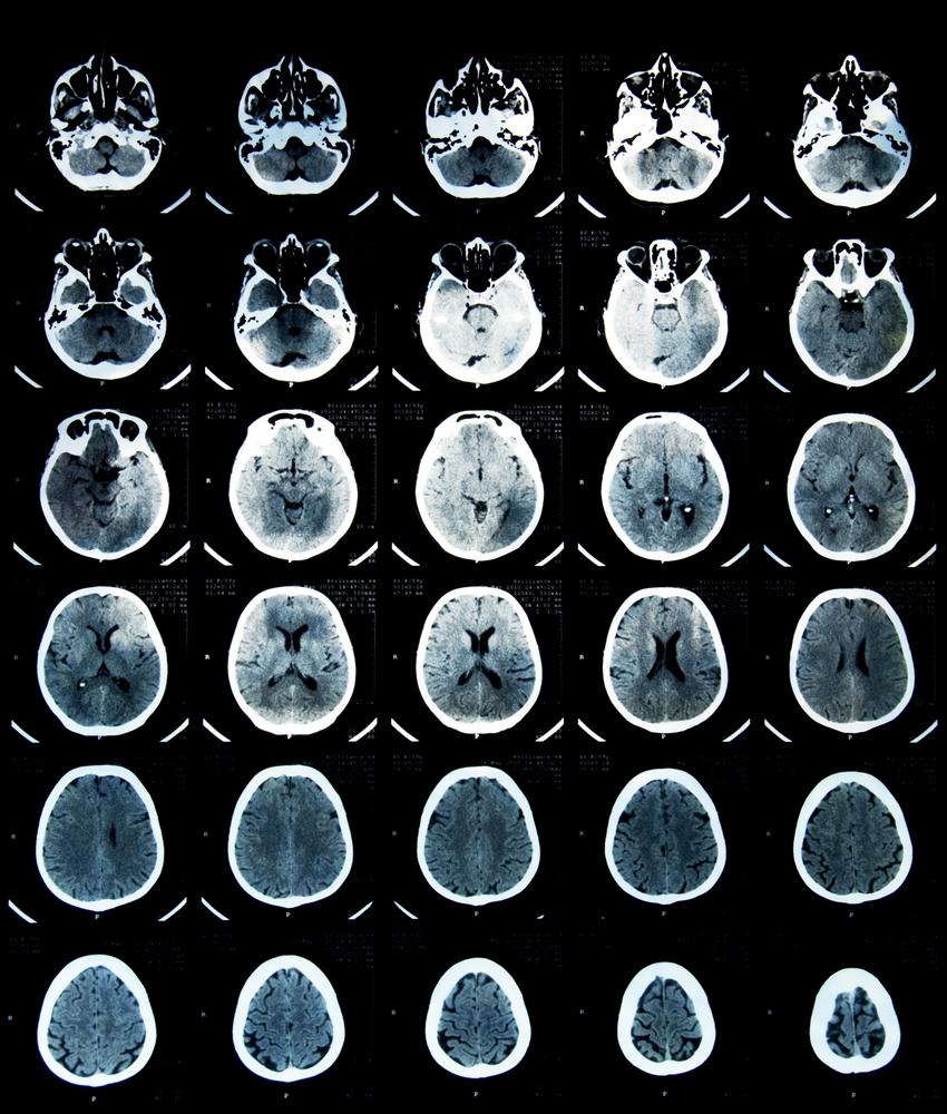 cancer la cap metastaza)