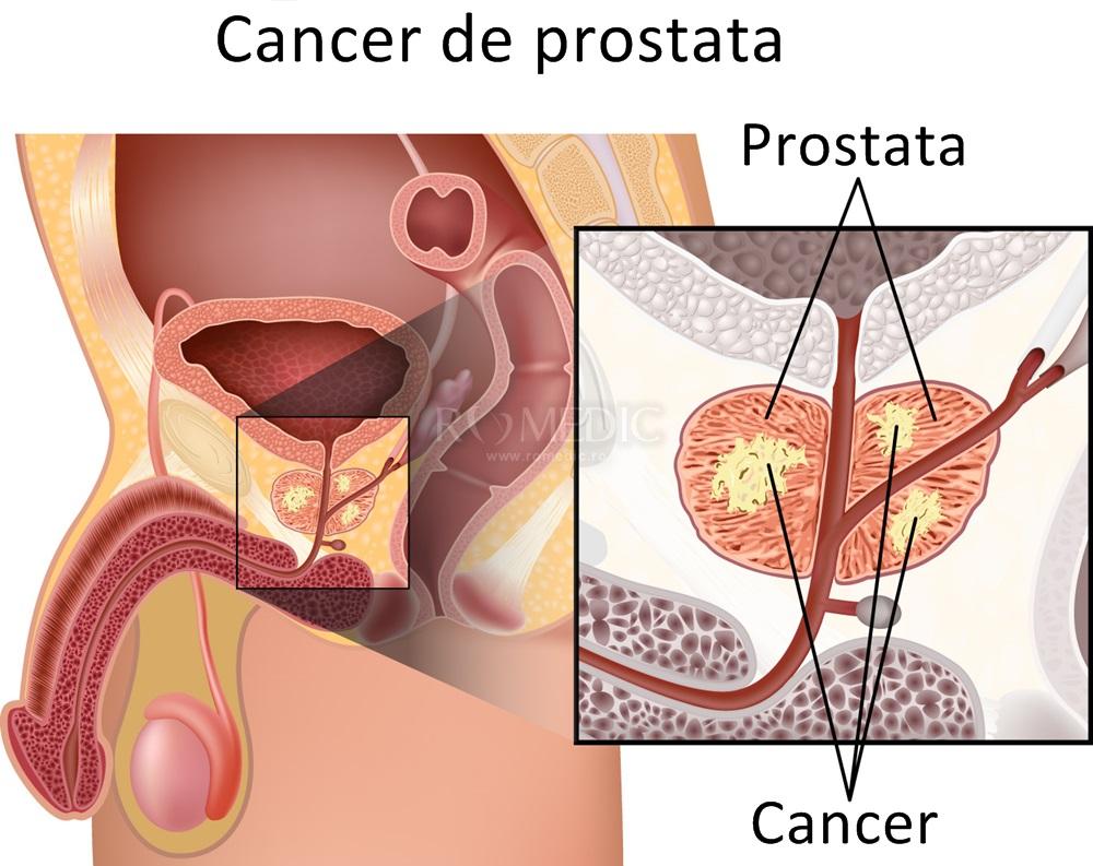 cancerul de prostata simptome