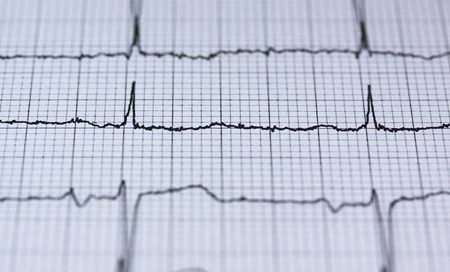 Cum afecteaza menopauza si menopauza prematura inima si oasele - dr. Andrei Laslău