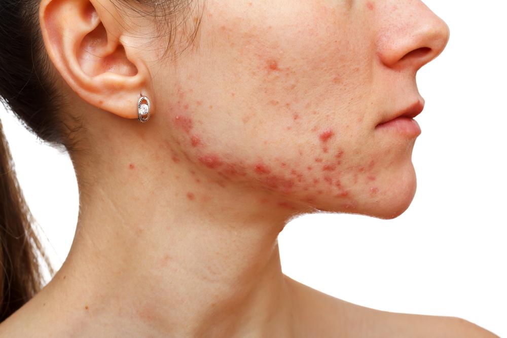 cancer de piele acnee