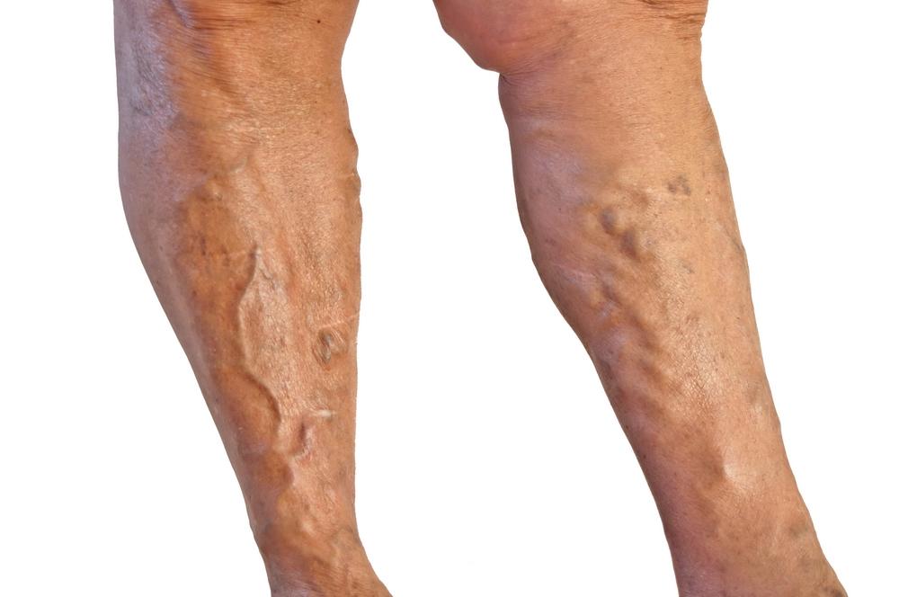 tromboflebita generala picioarele arzând când dormi