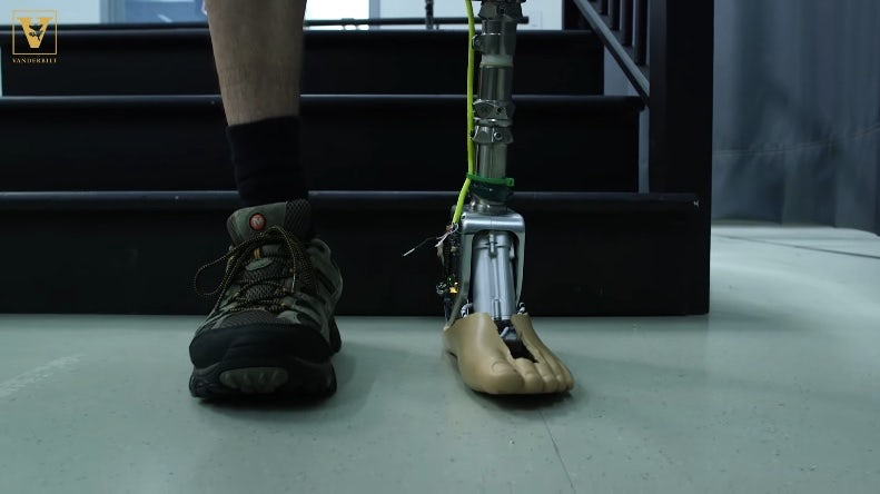 Artroplastie – picior si glezna – Enlife Solutions blog