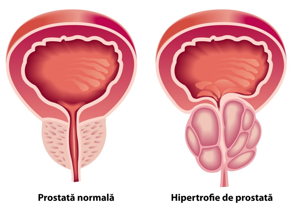 poate o erecție fără prostată
