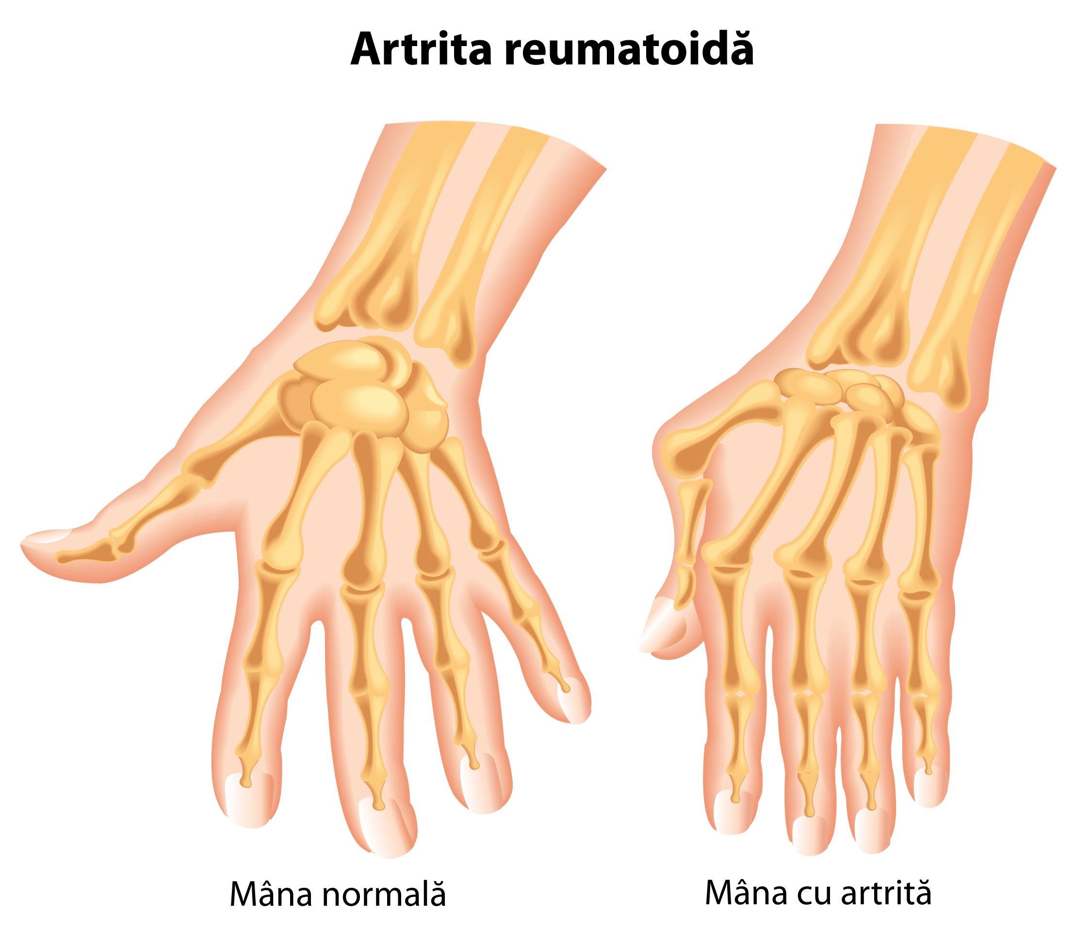 Forumul pentru tratamentul artrozei artritei - media-graphics.ro