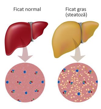 Noi strategii terapeutice pentru boala ficatului gras
