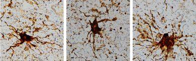 Genele zombie - o nouă descoperire despre viața celulară de după moarte
