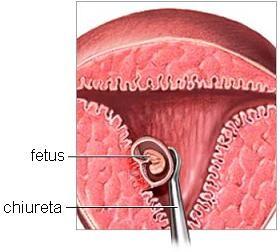Avortul spontan fara chiuretaj