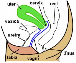 Cauze uterine de infertilitate: endometrioza si fibromul