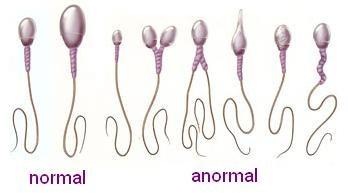 Cauze de infertilitate la barbati