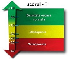 Osteodensitometria DEXA
