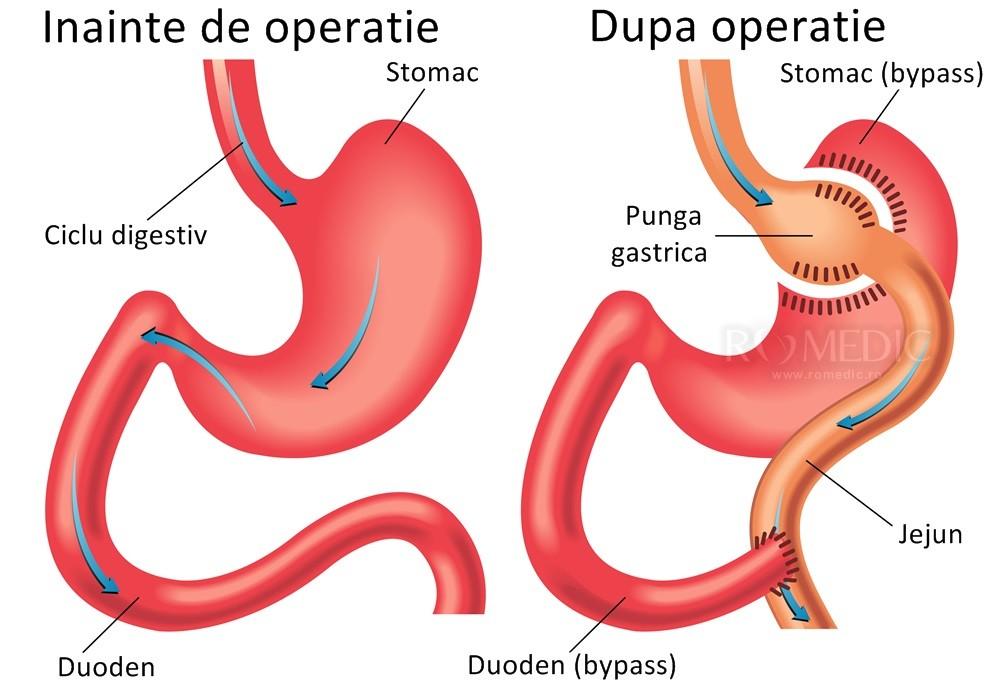 Dieta cu sindromul Dumping - Apendicită