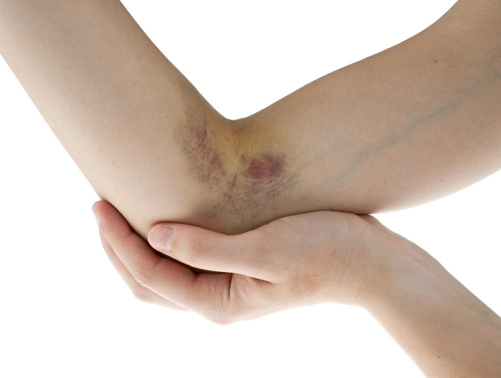 umflături și vânătăi pe articulația brațului)