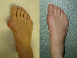 Tratamentul cu picioarele de toc cu vitafon IC